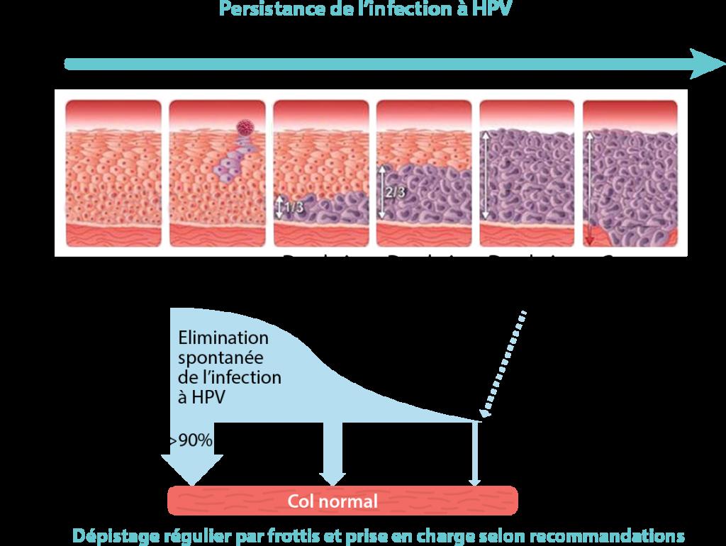 papillomavirus et cancer)
